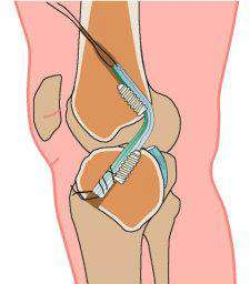 ACL-surgical-treatment
