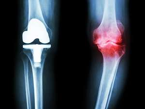 eplacement-knee-surgery