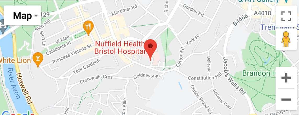 Jonathan Webb at Nuffield Health Bristol Hospital